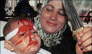"A mother rejoices after inflicting wounds on the head of her toddler in service to ""Allah"""